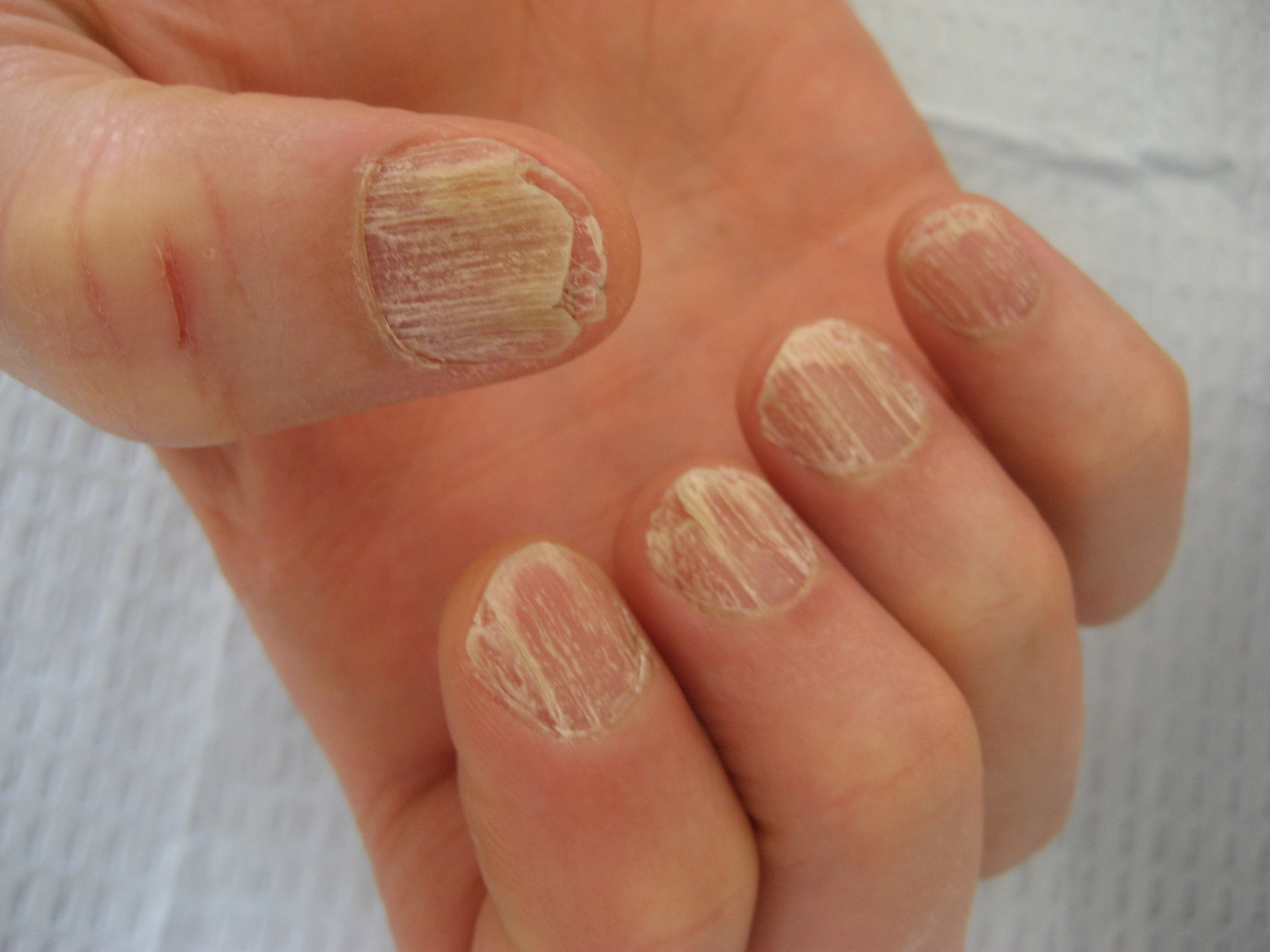 2.5 Kate has Thin Nails - GP Core Content