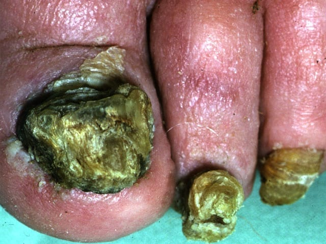 Bob Presents With Thickened Toenails Of 6 Months Duration On A Background Working In Construction