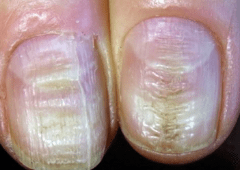 Gerry Presents With Painless Horizontal Grooves In His Nails On A Background Of Anxiety Atopic Dermais And Recent Hospitalisation From Pneumonia